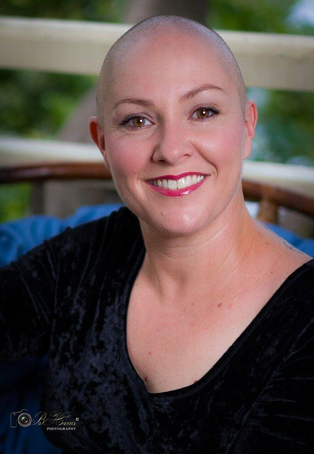 Woman Who Has Alopecia Shaves Her Head In Empowering