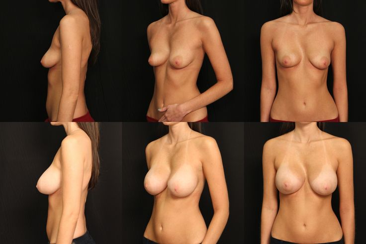 Breast Augmentation for correction of breast and chest wall asymmetry by Dr. Scott Ennis at Destin Plastic Surgery