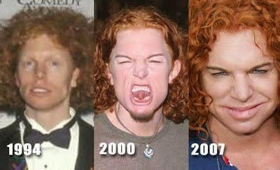 Plastic Surgery Celebrities: Carrot Top Plastic Surgery Botox ...