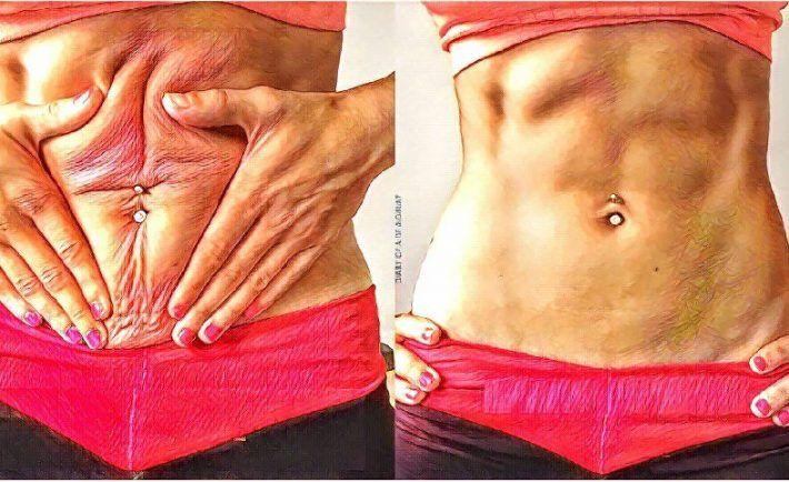 4 cviky pre ploché brucho, vďaka ktorým získate vysnívanú postavu! | Mega chudnutie