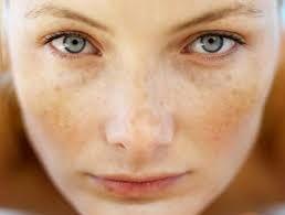 Warna kulit wajah yang tidak merata atau bisa disebut juga kulit belang menjadi masalah yang kerap d
