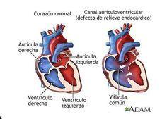 7 síntomas de un soplo cardíaco: ¡Conócelos! - Son muchas las personas que padecen soplos cardíacos. Aunque, si bien es cierto que la mayoría de las veces es algo inofensivo, merece la pena tenerlo en cuenta. Se deben básicamente a un flujo sanguíneo desigual que origina un sonido extraño al pasar por los vasos sanguíneos del corazón y sus válvulas: un soplo.