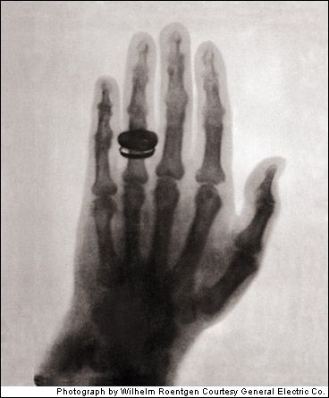 The first x-ray.  Wilhelm Konrad Roentgen's wife's hand with wedding ring.