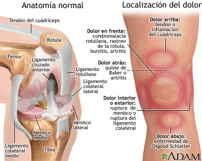 El dolor de rodilla es un padecimiento muy común. Puede comenzar de manera repentina ciente, a menudo después de una lesión o de ejercicio.  Te