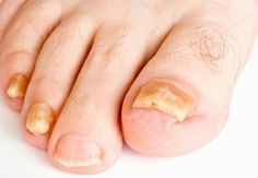How to Get Rid of Toenail Fungus? How to get rid of toenail fungus treatment? To