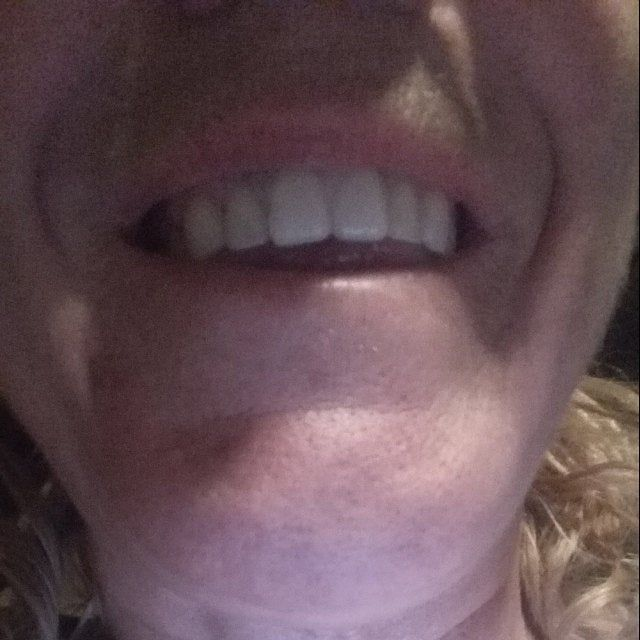 Missing Tooth Veneer Kit Front 6 Teeth Shade A2 False