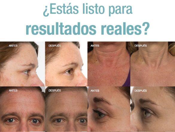 Nerium comienza a trabajar desde el primer día, pero notarás mejoras considerables en la apariencia de tu piel con el uso continuo. http://beautyskin1.nerium.com.mx
