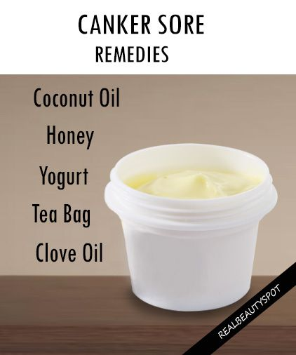 Remedies For Canker Sore