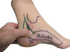 """Tarsal Tunnel Syndrome – Causes, Symptoms, Diagnosis, Treatment and Ongoing care - Tarsal tunnel syndrome is a compression neuropathy of the posterior tibial nerve as it passes under the flexor retinaculum in the medial ankle; a region commonly known as """"the tarsal tunnel.""""    Read more: http://health.tipsdiscover.com/tarsal-tunnel-syndrome-causes-symptoms-diagnosis-treatment-ongoing-care/#ixzz2lvndm4lA"""