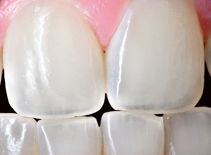 No more fillings! Scientists have figured out how to regenerate dentin, the material inside our teeth.