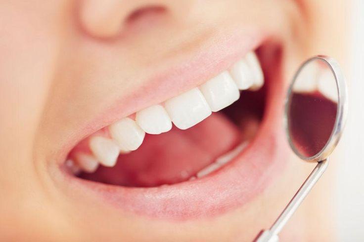 Limpieza dental. FACUA )precio recomendado 46 euros