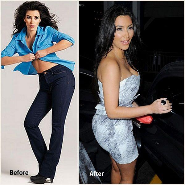 Kim Kardashian Plastic Surgery From Time to Time