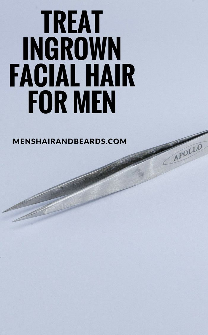 Prevent and treat ingrown facial hair for men with these techniques.