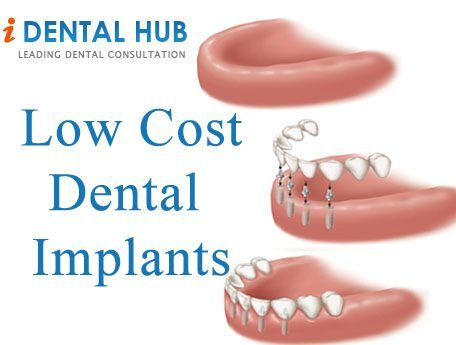 Cost of dental impants used to be high but now days many low cost dental implant or implants options are available. There are many ways and places where you can have implants at low cost.