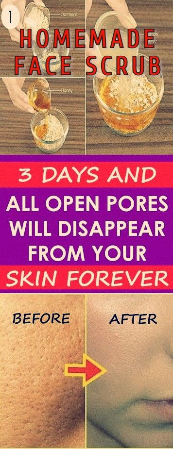 BEST HOMEMADE FACE MASK FOR ACNE, SCARS, ANTI AGING, and SOFT SKIN