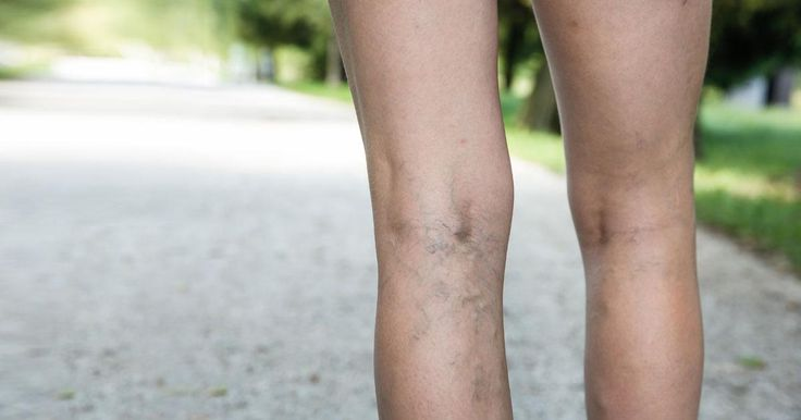 Get Rid Of Leg Cramps Naturally