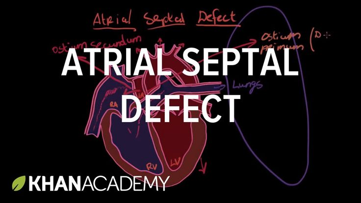 Atrial septal defect | Circulatory System and Disease | NCLEX-RN | Khan ...