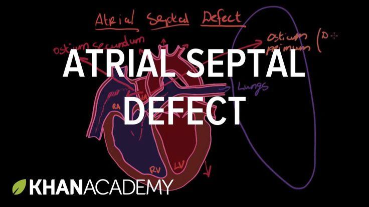 Atrial septal defect   Circulatory System and Disease   NCLEX-RN   Khan ...