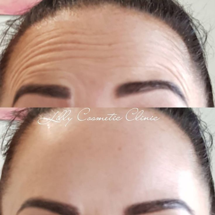Forehead Lines SMOOTHED! ❤Using Anti-Wrinkle Injections❤  Forehead lines can be treated starting from $150, depending on how many units are required. When combined with the frown - this costs $349 and includes as many units as you need. No limitations. ��0406 154 559 Or DM through insta ��  http://tipsrazzi.com/ipost/1505817444181182298/?code=BTlvPzBAYda
