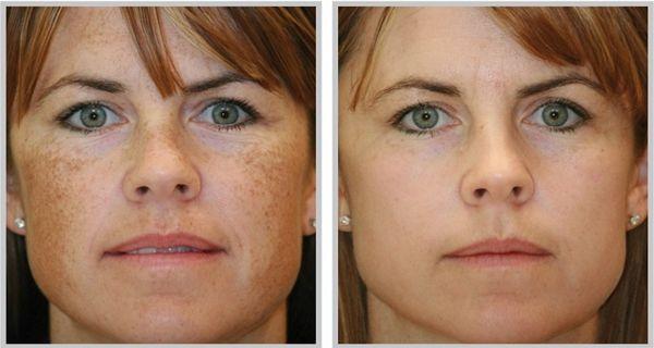 Os melhores remédios naturais mais eficazes para remover manchas escuras do rosto.