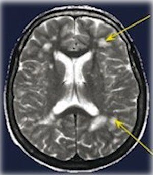 Migraines and White Matter Lesions - What We Should Know - Migraine