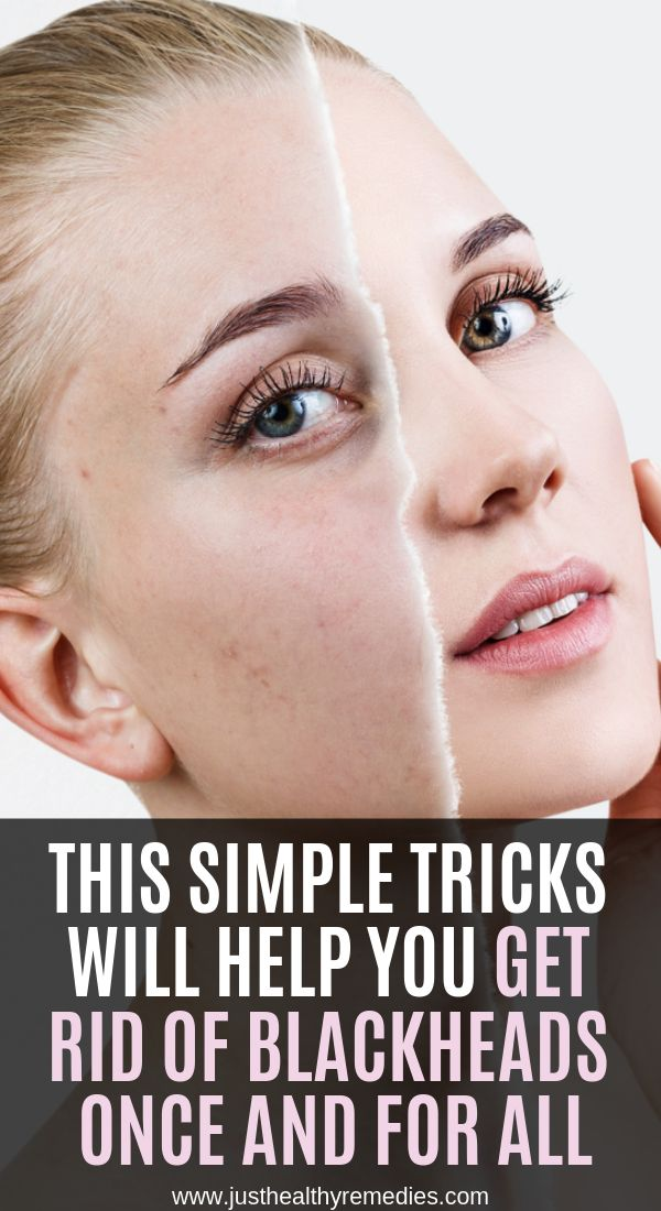 This Simple Tricks Will Help You Get Rid Of Blackheads Once And For All