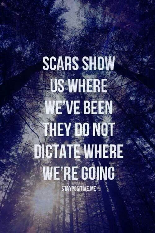 Scars… Sooo incredibly true! You are not your pa…