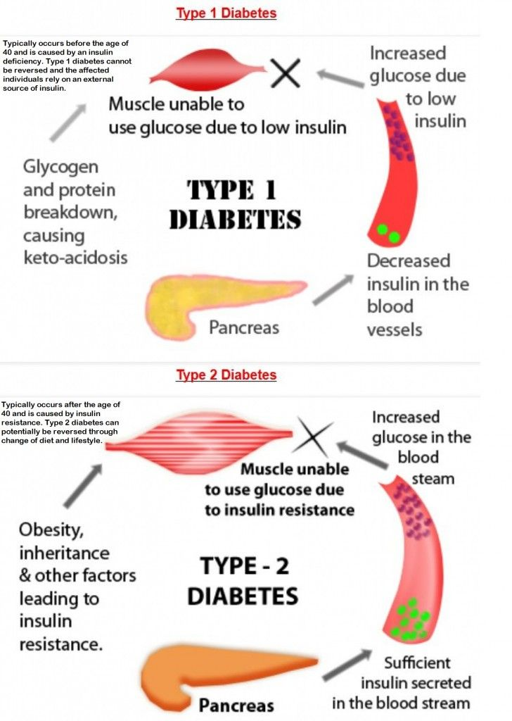 an analysis of news of pre diabetic When a survey was given to primary care physicians (pcps) at a medical retreat most of the 140 respondents did not know all 11 risk factors that qualify individuals for pre-diabetes.