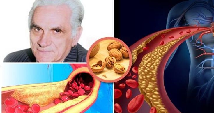 Egy neves terapeuta szerint: Csak egyetlen betegség létezik, a rossz vér! Nézd, hogyan lehet megtisztítani a vért a méreganyagoktól!