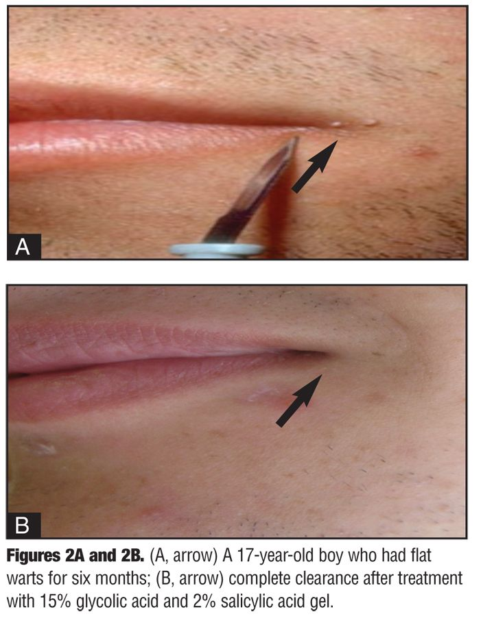 What do genital warts look like? | Yahoo Answers