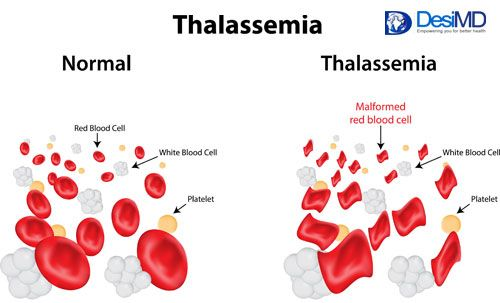 Thalassemia - Blood Disorders - Health Education - DesiMD Healthcare - India
