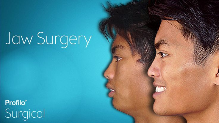 Jaw Surgery | Your questions answered