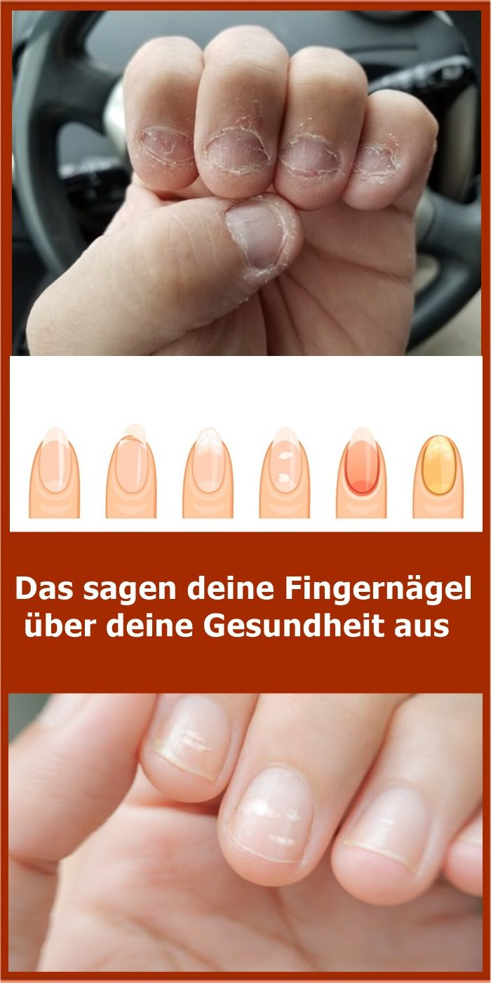 That's what your fingernails say about your health njuskam! – Gesundheit