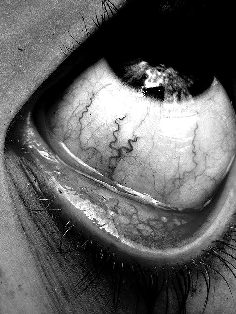 ✯ Eye Veins .:☆:. Unknown Photograph ✯