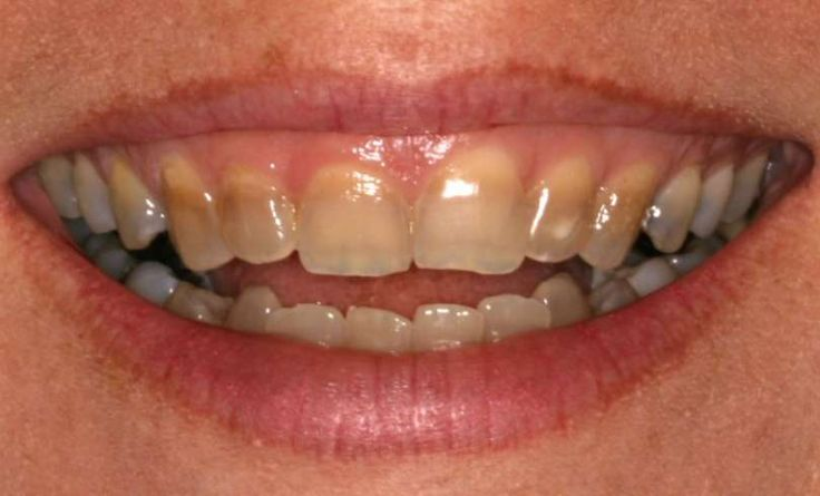 Sencillos trucos para blanquear tus dientes