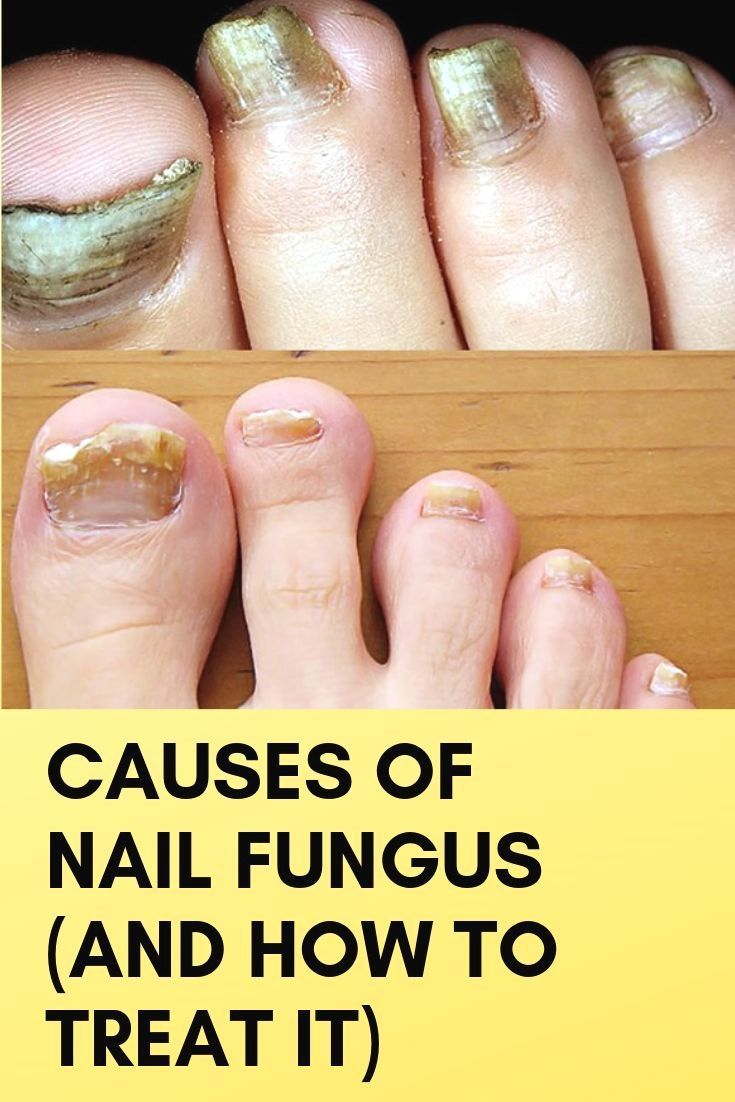 Fungal Infections Can Attack Any Part Of The Body This Is Because The Fungus Is Usually Inside And On The Nail Fungus Foot Fungus Remedies Nail Fungus Remedy