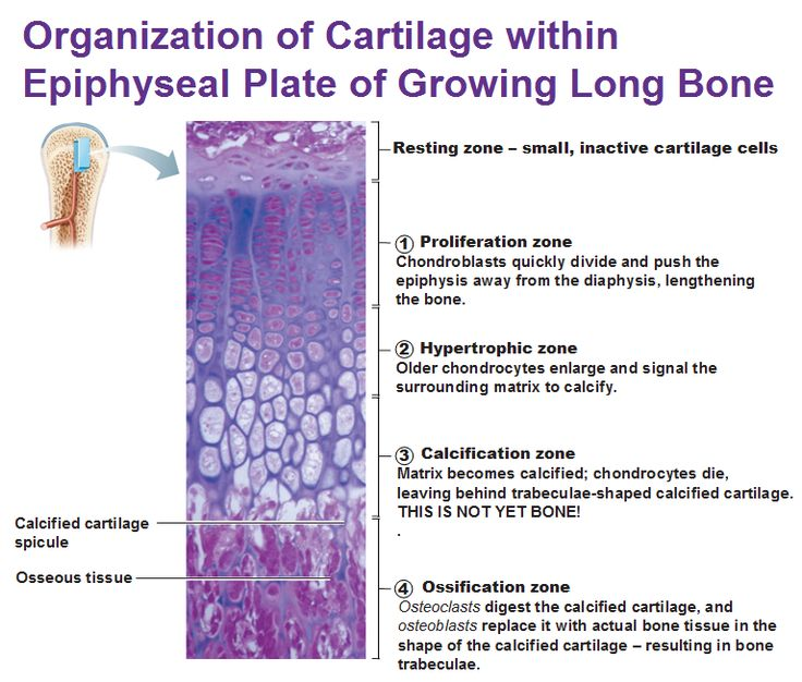 organization of cartilage within epiphyseal plate of growing long bones in children                                                                                                                                                                                 More