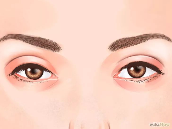 CUIDADOS COM OS OLHOS Trate o inchaço embaixo dos olhos. Experimente os passos abaixo para diminuir o inchaço: Durma o suficiente. Lave o rosto com água fria. Faça compressas de saquinhos de chá sobre os olhos. O tanino presente nos chás age como um adstringente natural, ajudando a firmar a pele. Diminua o consumo de sal. O excesso de sal causa a retenção hídrica, resultando em inchaço na área dos olhos. Exercite-se para melhorar a circulação sanguínea, o que reduz a retenção hídrica.