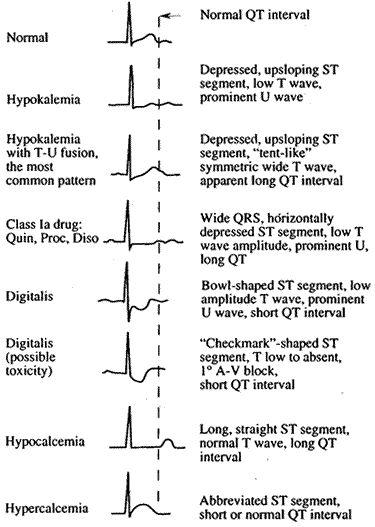 Hypomagnesemia EKG | Various morphologies of ST-T-U abnormalities, as seen in lead V4 :