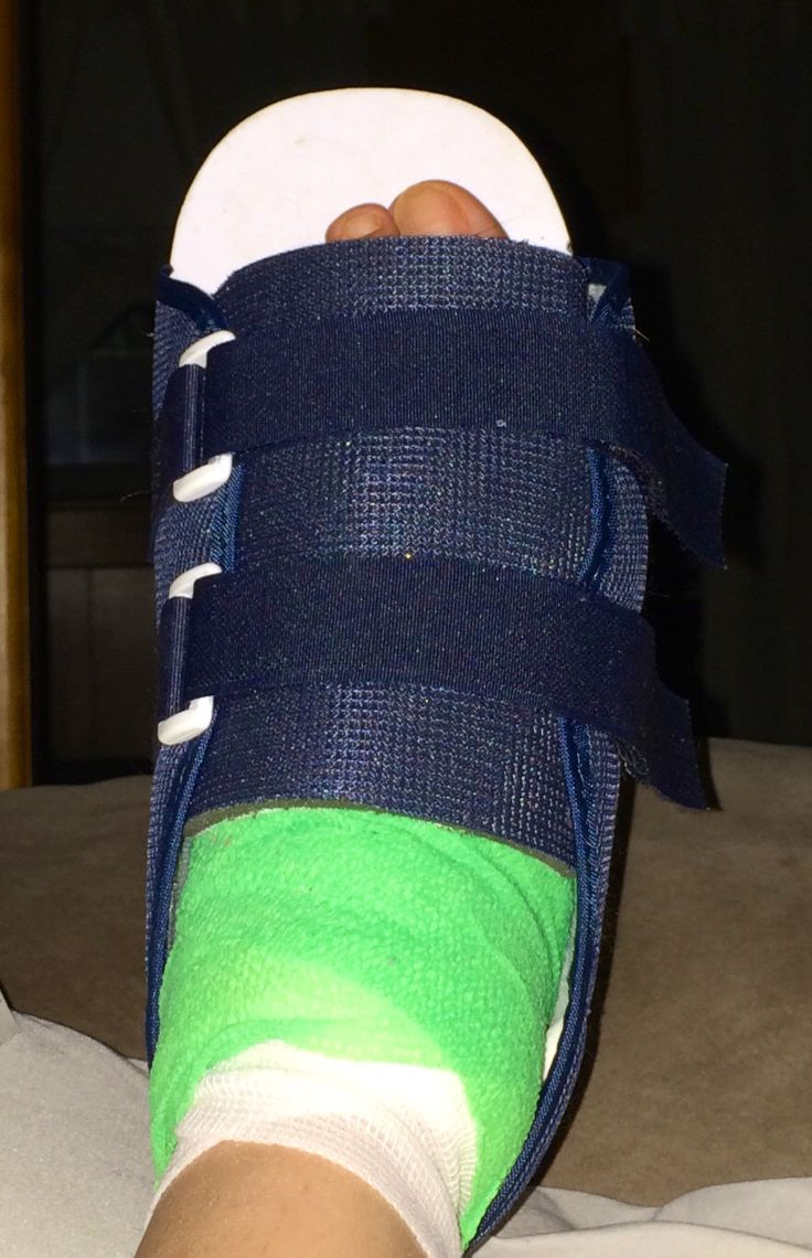 The boot from top  2nd bunion surgery but on left foot this time  Bunion Bunion surgery