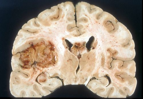 Glioblastoma multiforme (GBM) is the most common and aggressive form of malignant brain tumor in humans.