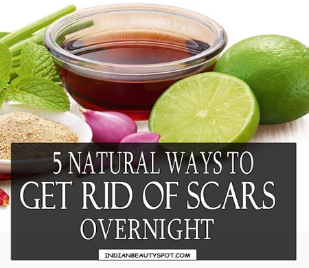 Overnight Acne Scar removal with natural remedies