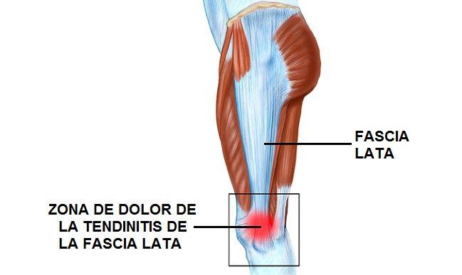 Dolor musculos de todo el cuerpo