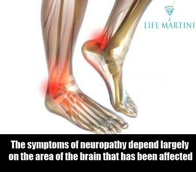 neuropathy feet treatment