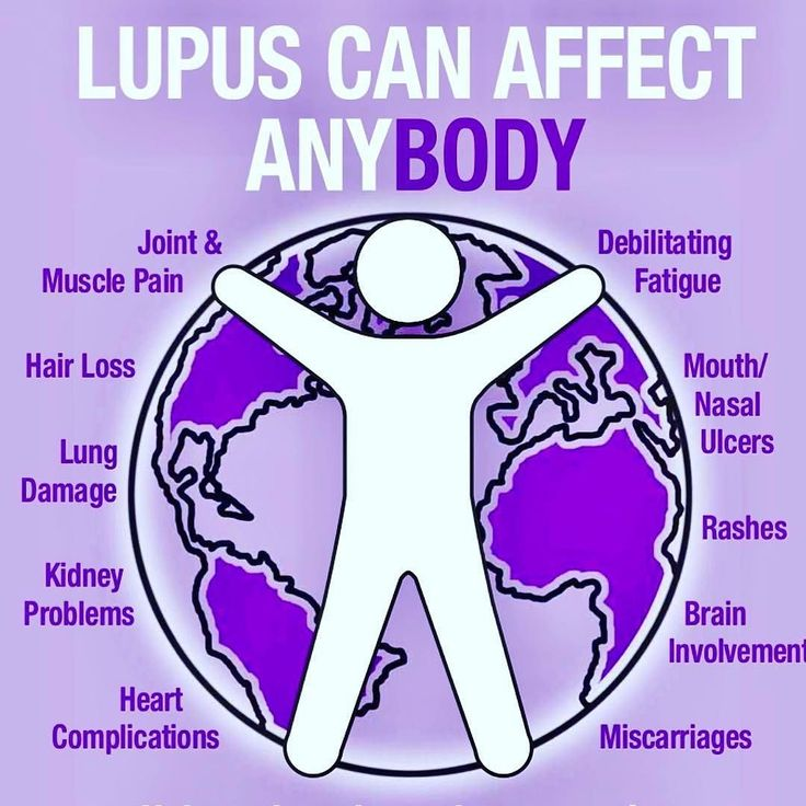 The 25+ best Lupus quotes ideas on Pinterest
