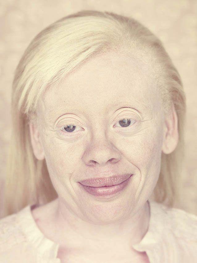Albinismi