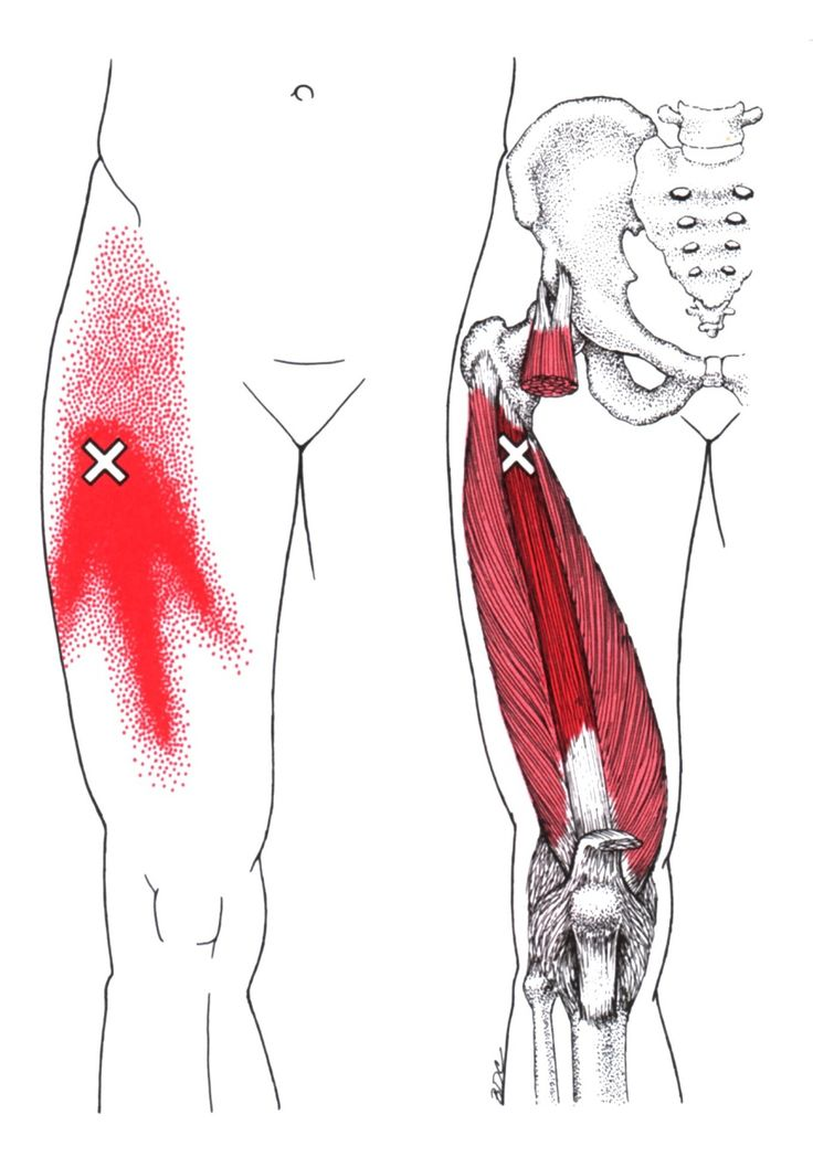 Vastus Intermedius | The Trigger Point & Referred Pain Guide