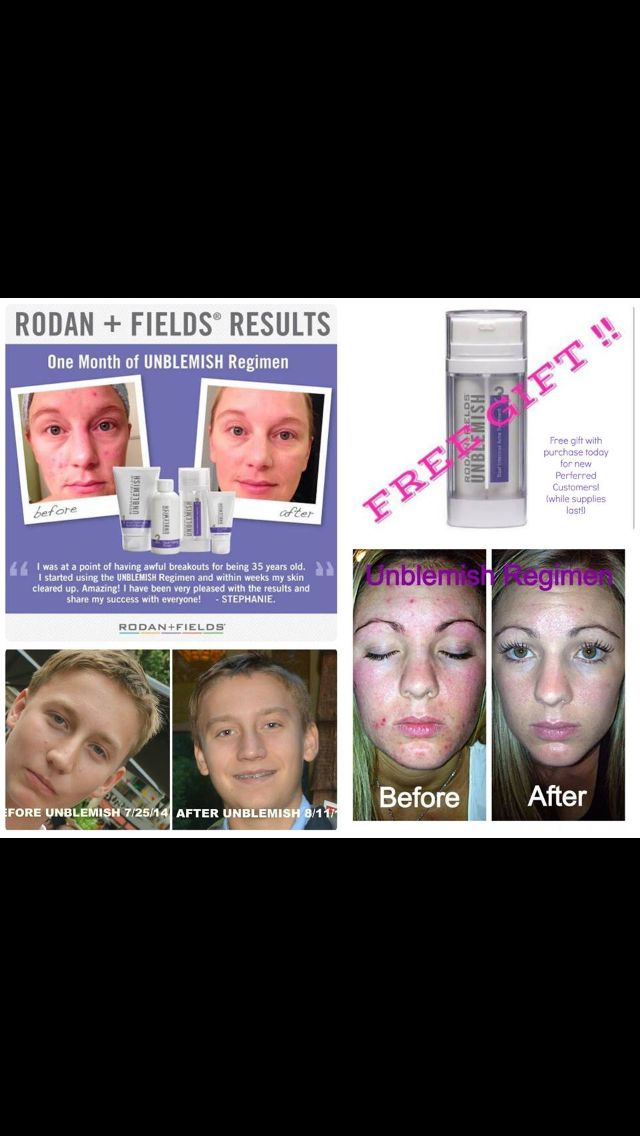 With so many kids starting school next week, the last thing they should be worried about is acne. Our Unblemish regimen is guaranteed to clear their skin (and yours too!) Get a FREE Dual Active Treatment with every new preferred customer ($65 value). While supplies last. It's back to school and these will go fast. Private message me to get clear skin and your free gift.