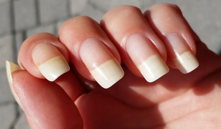 25 b sta nail growth id erna p pinterest sk nhet - Easy home remedy strengthen dry brittle nails ...