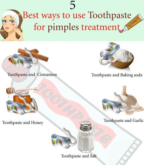 What does toothpaste do to Acne? Know how to use toothpaste on zits, how long to keep toothpaste on pimples. Best kind of toothpaste for pimples cure.